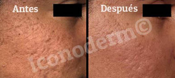 eliminar acné láser iconoderm