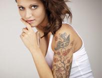 borrar tatuajes Iconoderm
