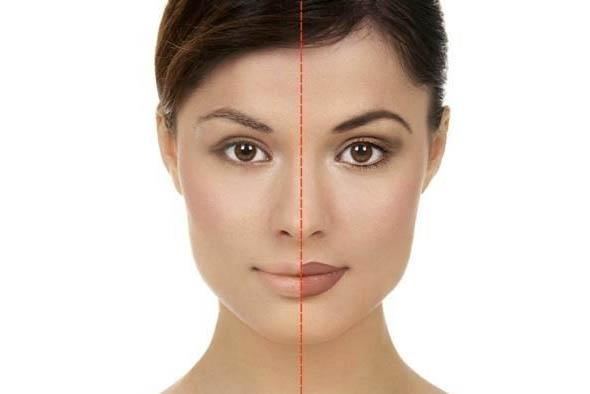 borrado de micropigmentación - maquillaje permanente - iconoderm