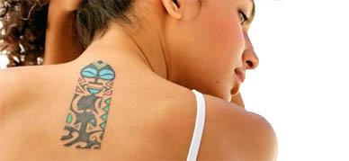 iconoderm borrar tatuaje
