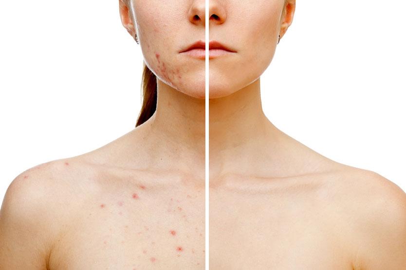 eliminar manchas piel iconoderm