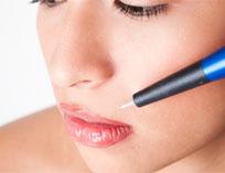 borrar maquillaje permanente Iconoderm